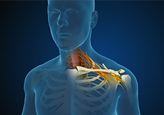 Cervical Radiculopathy & Myelopathy