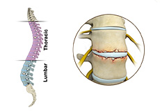 Fracture of the Thoracic Spine