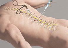 Minimally Invasive Lumbar Surgery